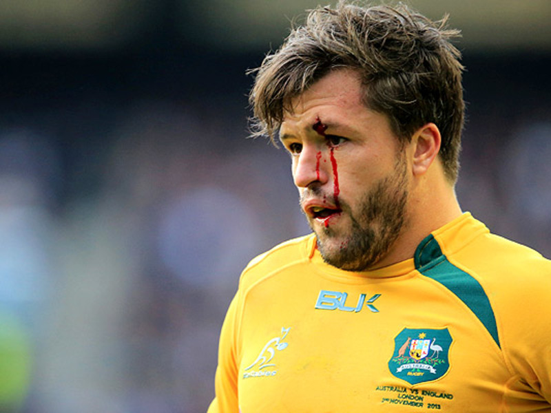 Large adam ashley cooper bleeding