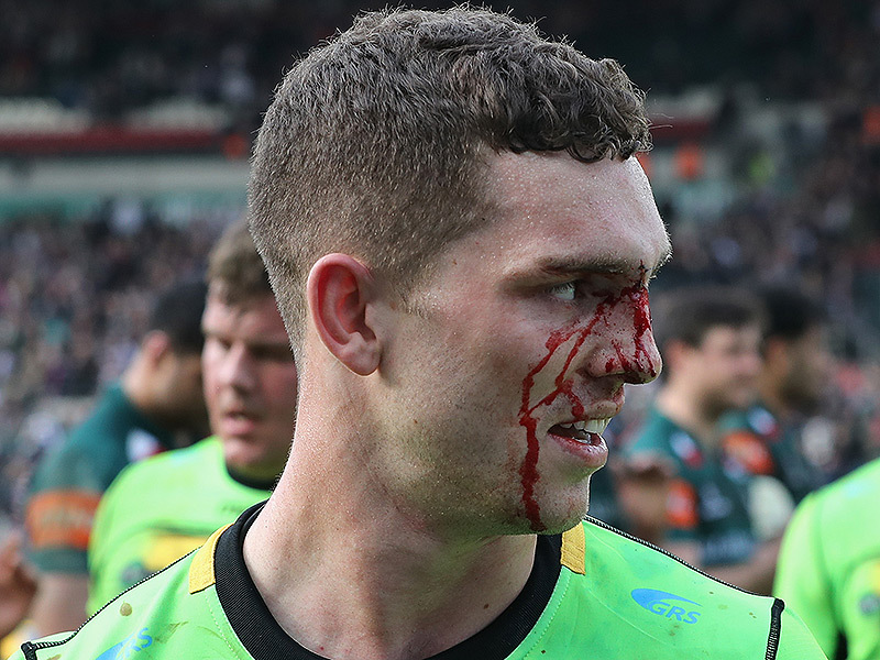 Large george north bleeding 800