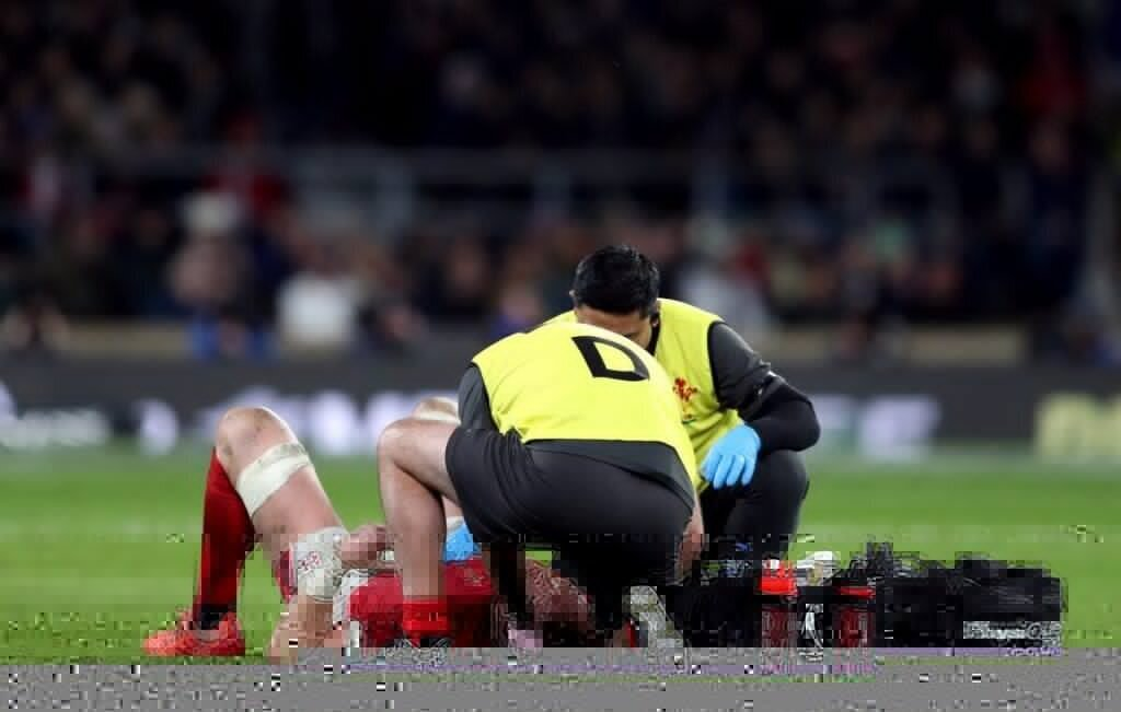 Rugby to trial eye-tracking tech to detect concussion